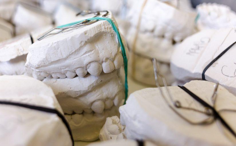 Zły sposób odżywiania się to większe ubytki w jamie ustnej oraz dodatkowo ich brak